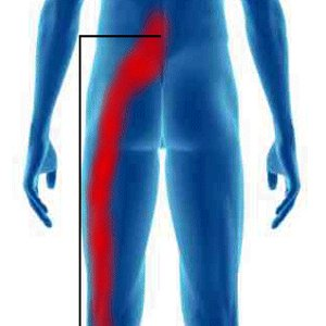 Le lumbago rendant au pied droit le diagnostic
