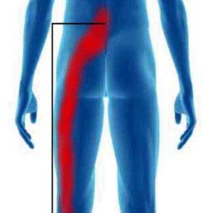 nerf sciatique douleur jambe gauche